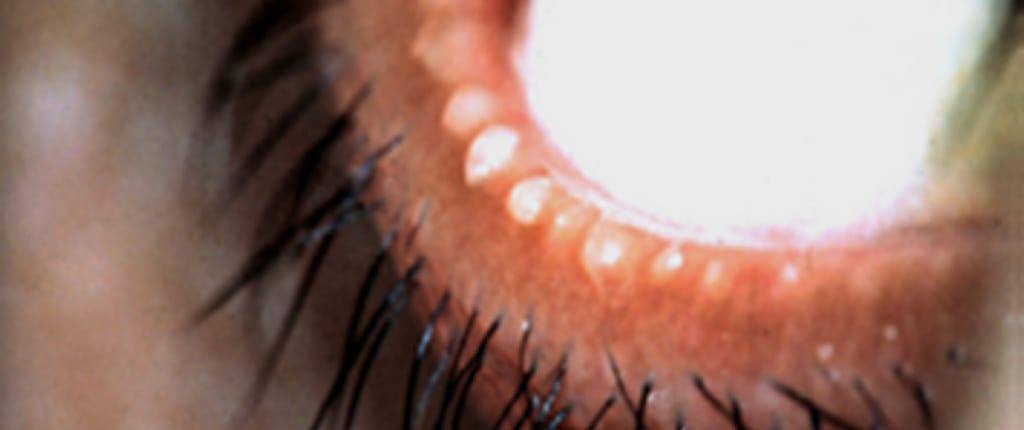 Augenlid mit gestauten Meibomdrüsen und getrocknetem Sekret